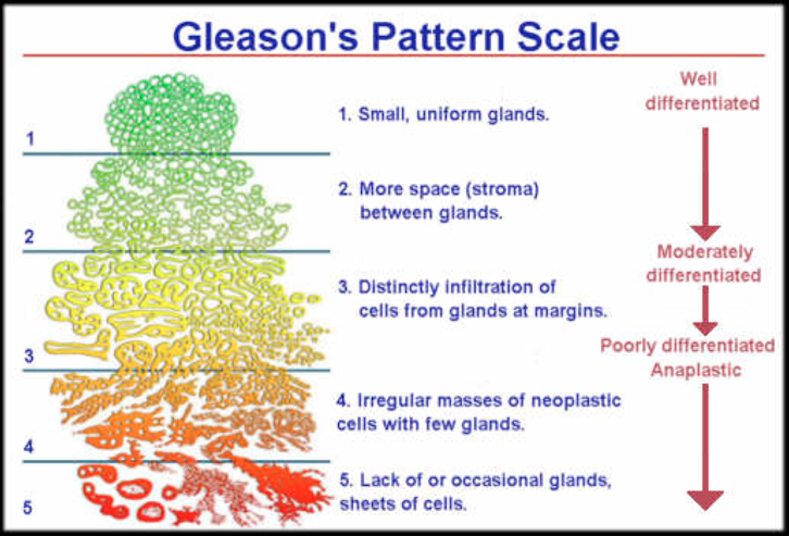 gleason pattern scale